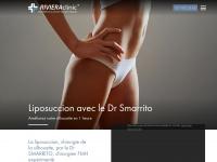 liposuccion.ch