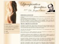 liposuccion-chirurgie.com