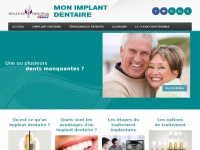 mon-implant-dentaire.fr
